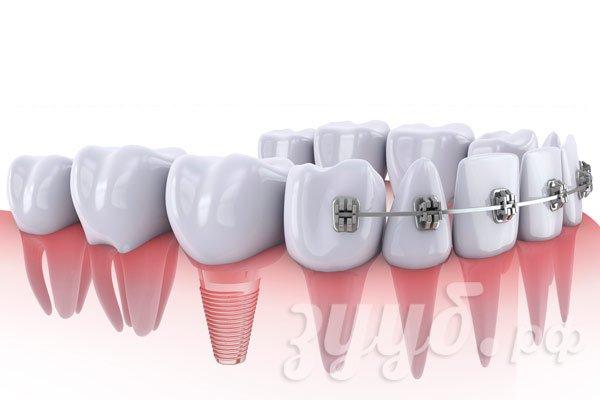 Миниимпланты в ортодонтии