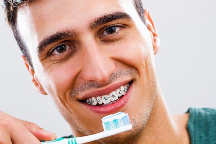 Как чистить зубы с брекетами: применяемые средства