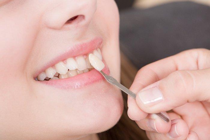 Виниры или коронки на передние зубы мнение стоматологов
