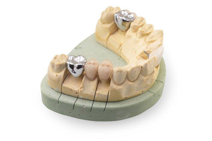 Отбеливание зубов из керамики