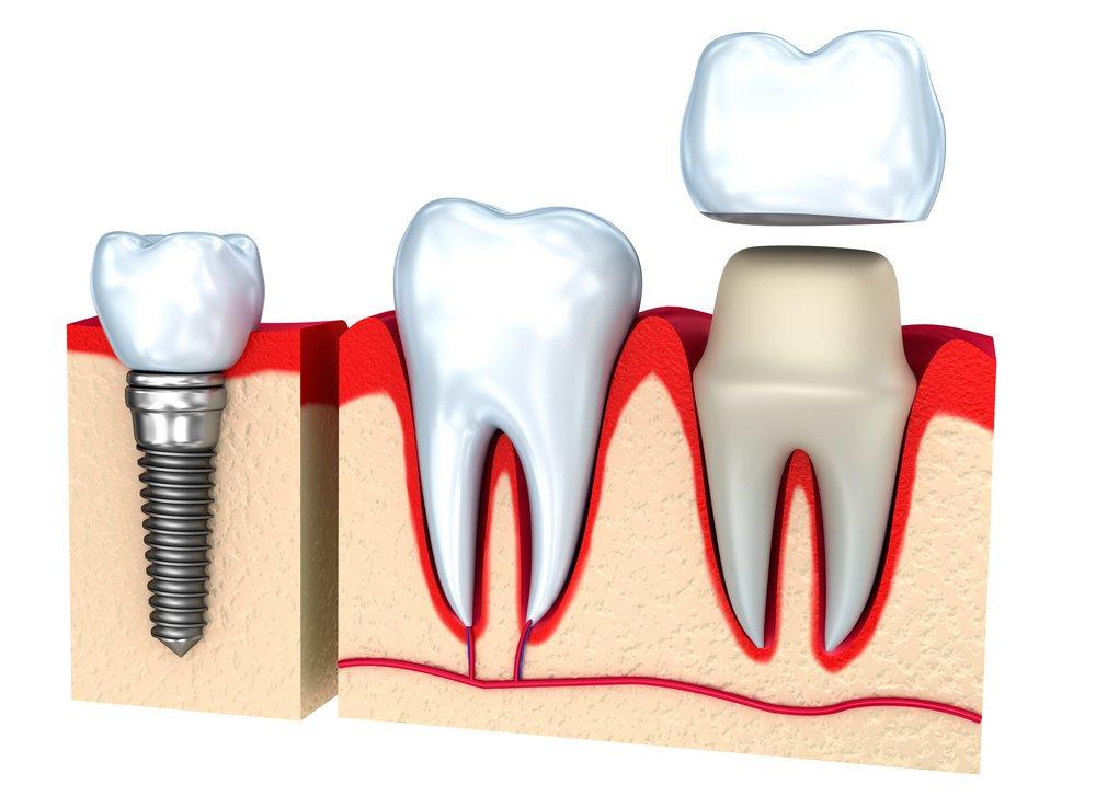 все потому, имплантация зубов стоимость новоуральск эмоционального