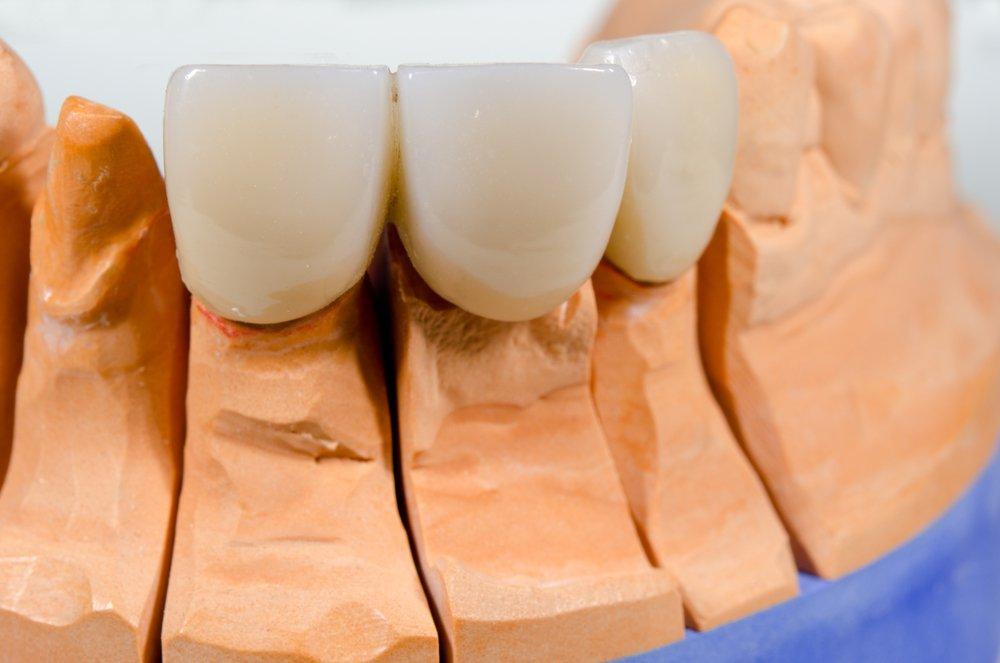 При отсутствии одного или двух зубов стоматологи предлагают установить либо зубной мост, либо импланты.