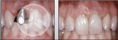 Если нет коренных зубов как вставить зубы