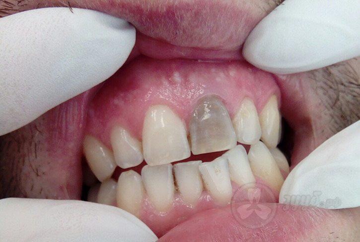 отбеливание зубов виды и цены одинцово