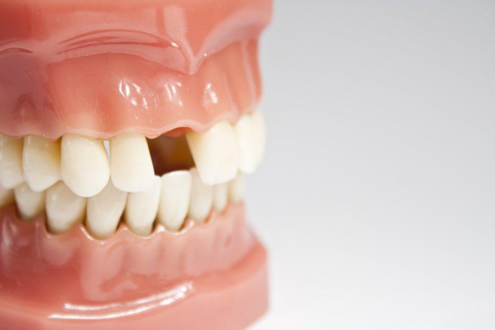 Имплантация – наиболее современный и совершенный способ восстановления целостности зубного ряда.