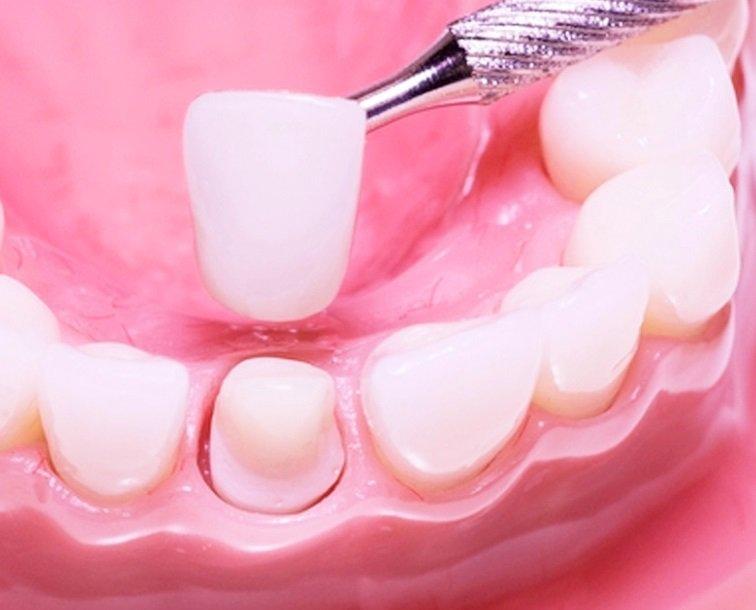 Как влияет коронка на зубе