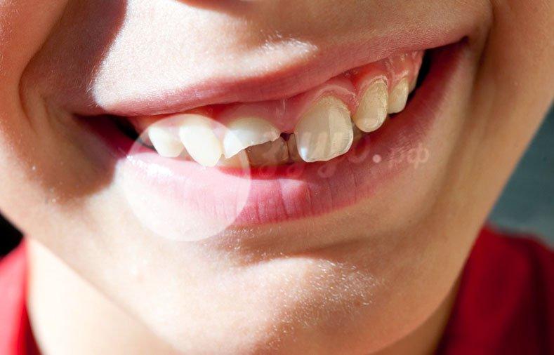 Отломилась половина зуба что делать