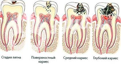 Сколько по времени лечится кариес — Болезни полости рта