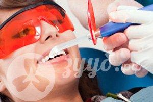Ультразвуковая чистка в стоматологии Зууб.рф