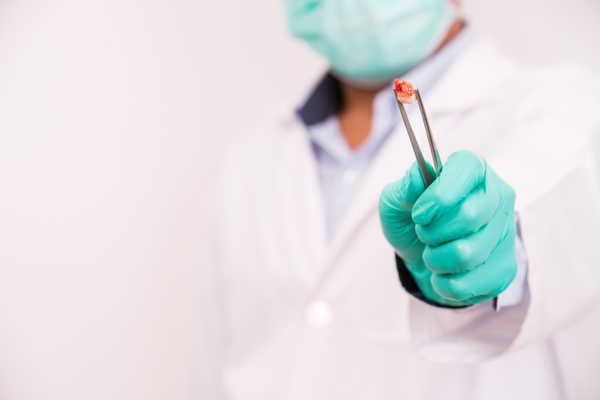 После удаления зуба течет кровь что делать