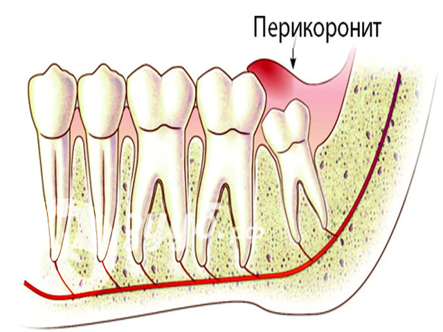 Удаление зуба мудрости - операция по удаление зуба мудрости