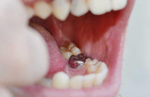 Альвеолит после удаления зуба как лечить в домашних условиях 857