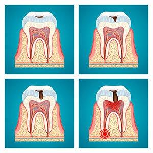 Степень разрушения зуба кариесом.
