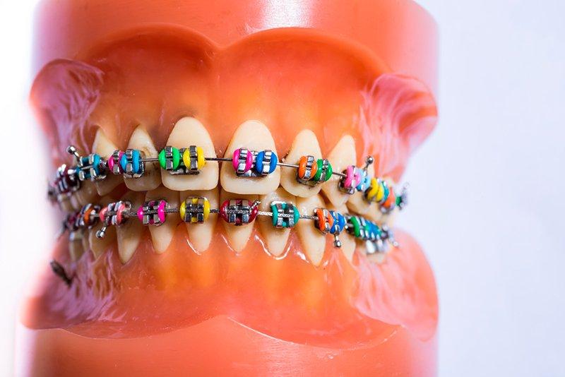 Лигатуры-резиночки на металлических брекетах можно установить любого цвета.