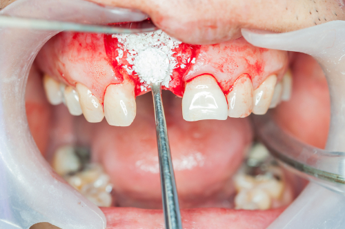 костная пластика при имплантации