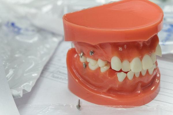 Ортодонтические мини-импланты