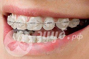 Сапфировые брекеты на зубы на обе челюсти