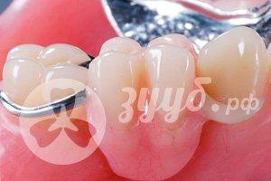 выбор имланта в стоматологической клинике