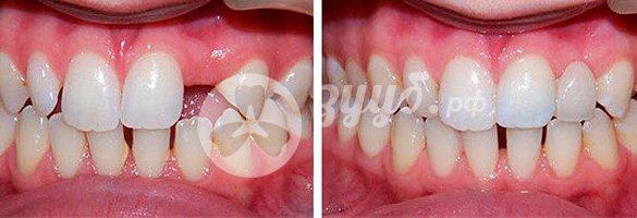 одноэтапная имплантация на верхней челюсти