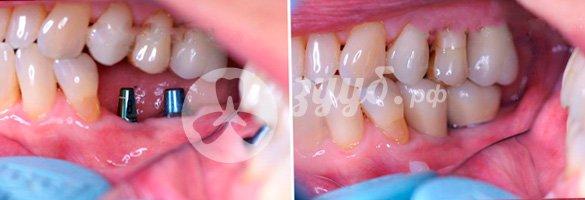 двухэтапная имплантация двух имплантов на нижней челюсти