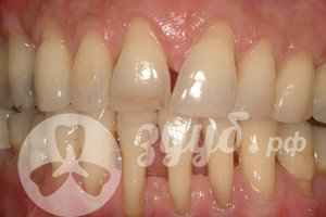 расшатывание зубов при парадонтозе