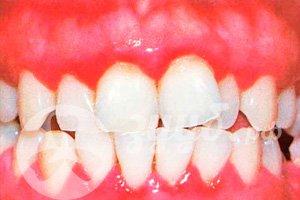 нарушение зубов и десен при гингивите