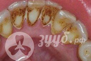 последствия запущенного зубного налета