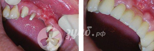 Установка металлокерамики на передние зубы до и после