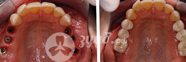 Установка металлокерамики на задние зубы до и после