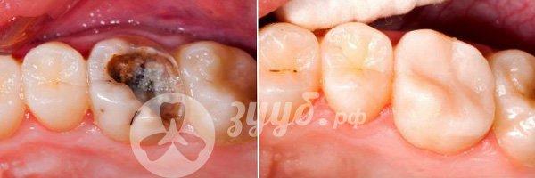 лечение глубокого пульпита до и после