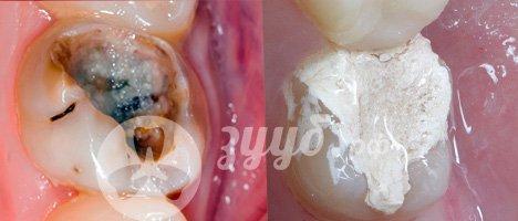 лечение пульпита на молочном зубе  до и после