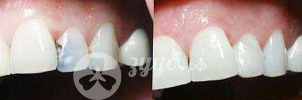 удаление пульпита на передних зубах до и после