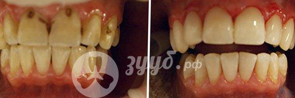 удаление пульпита на верхних зубах до и после