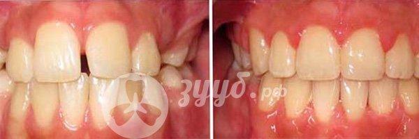 устранение щели между передними зубами до и после