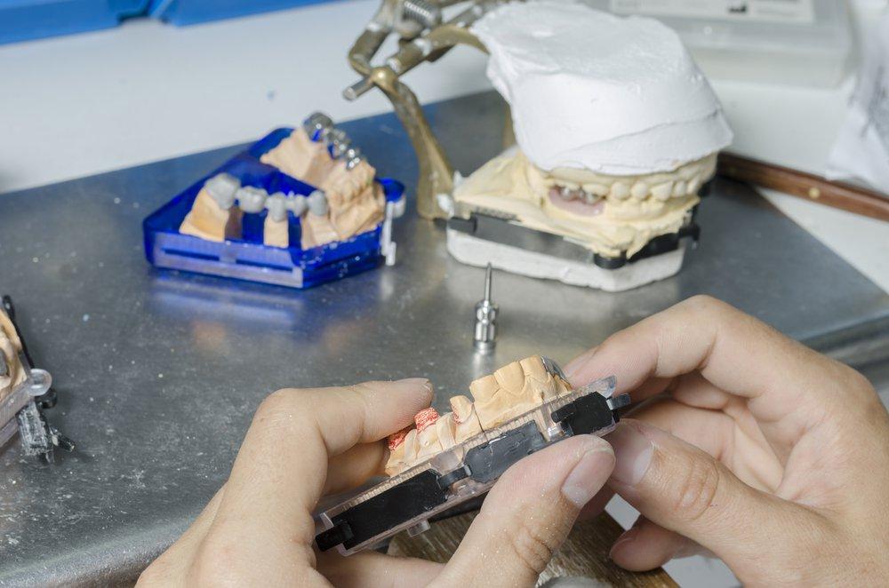 Коронки изготавливаются по слепкам с зуба.