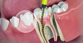 Стоматологические препараты для лечения зубов