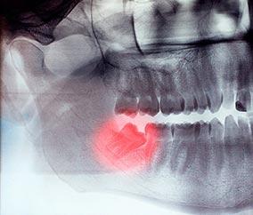 Дистопированный ретинированный зуб – такой зуб, который занимает неправильно положение в зубном ряду и не прорезался (или прорезался частично).